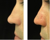liquid rhinoplasty cost
