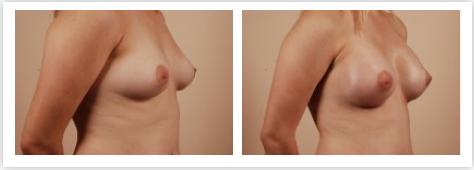 Breast enhancement san francisco