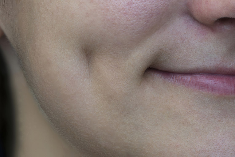 Dimple on a woman's cheek
