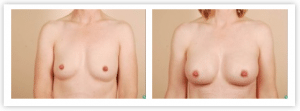 cost of breast augmentation