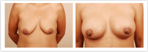 breast symmetry