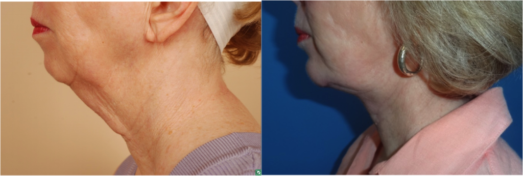 neck lift without the facelift