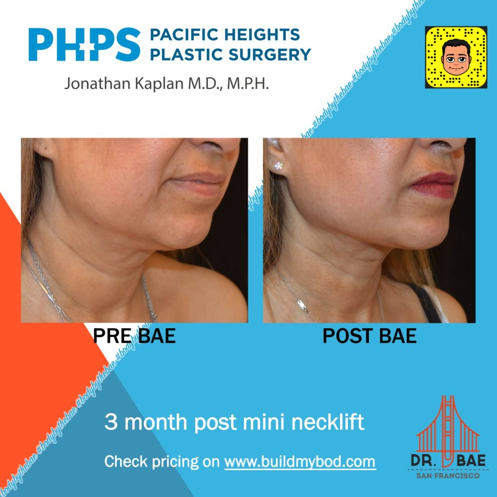 SIMI™ Neck Lift