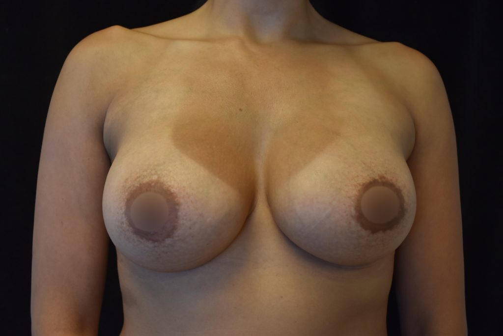 breast implants will drop