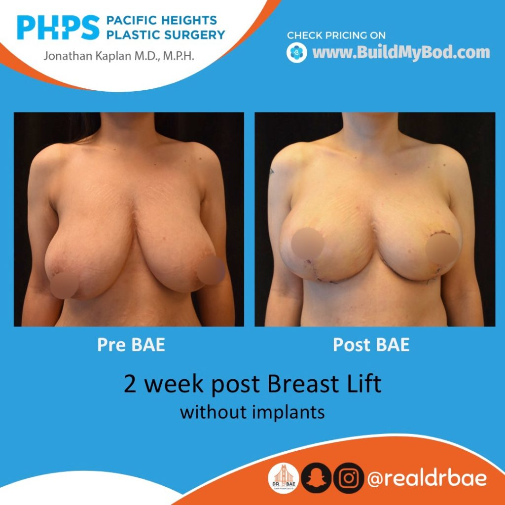 breast lift pricing
