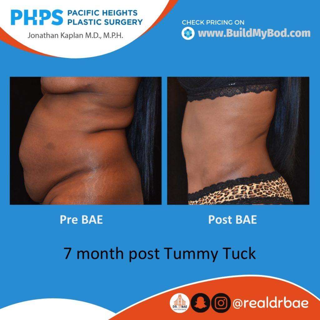 abdominal bulge after pregnancy