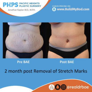 what to do about stretch marks