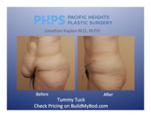 hysterectomy and tummy tuck