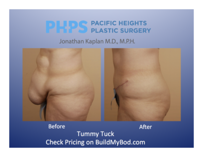 hysterectomy and tummy tuck